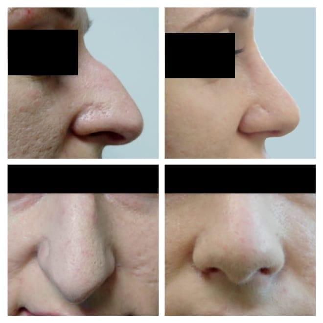 Liikme suurus soltub nina suurusest Kui suu suurus on 43, siis mitu cm liige